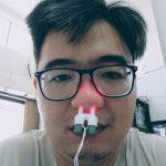 Trị viêm mũi dị ứng bằng ánh sáng – Máy Medinose Pro